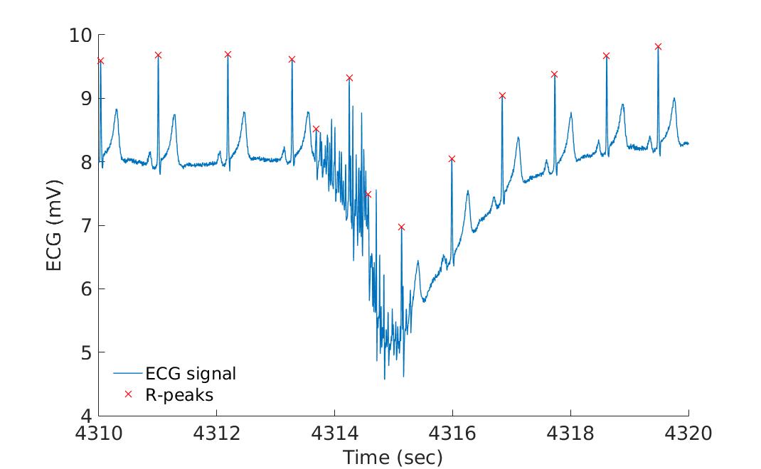 Wfdb Read Signal